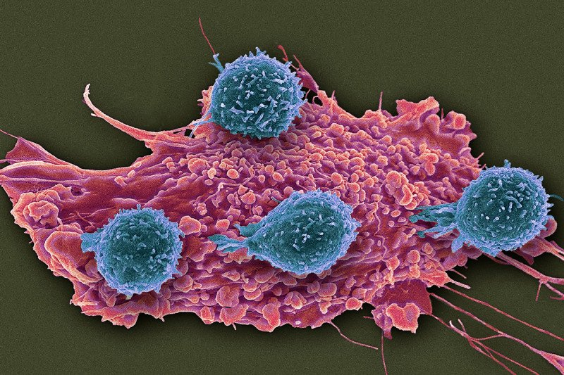 Scanning electron micrograph (SEM) of T lymphocyte cells (blue) attached to a red cancer cell.