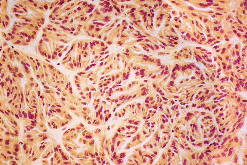 Papillary renal cell carcinoma under the microscope