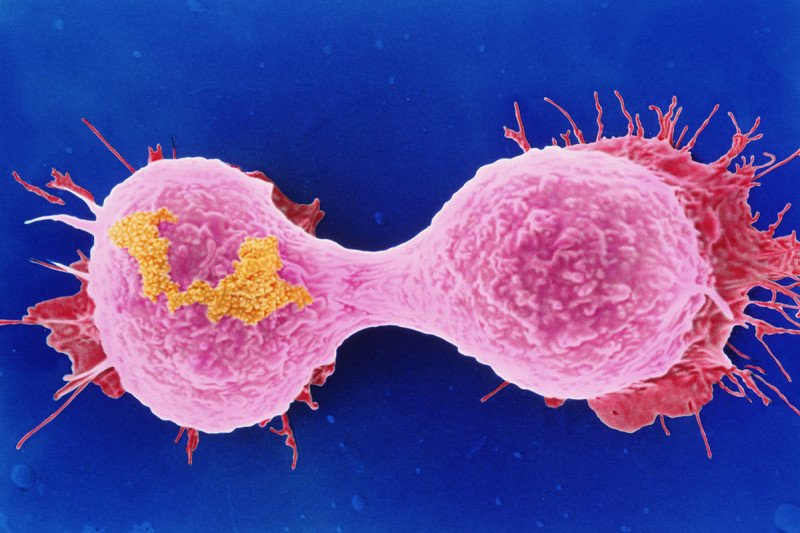 Image of dividing breast cancer cells taken with electron microscope.
