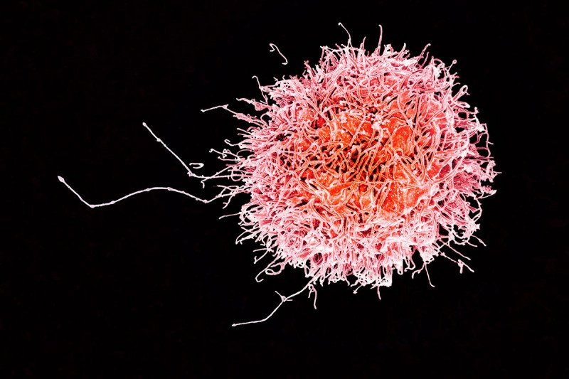 electron micrograph of a natural killer cell