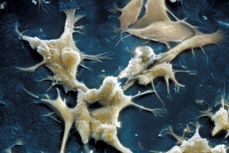 Microscopic image of prostate cancer cells in culture.
