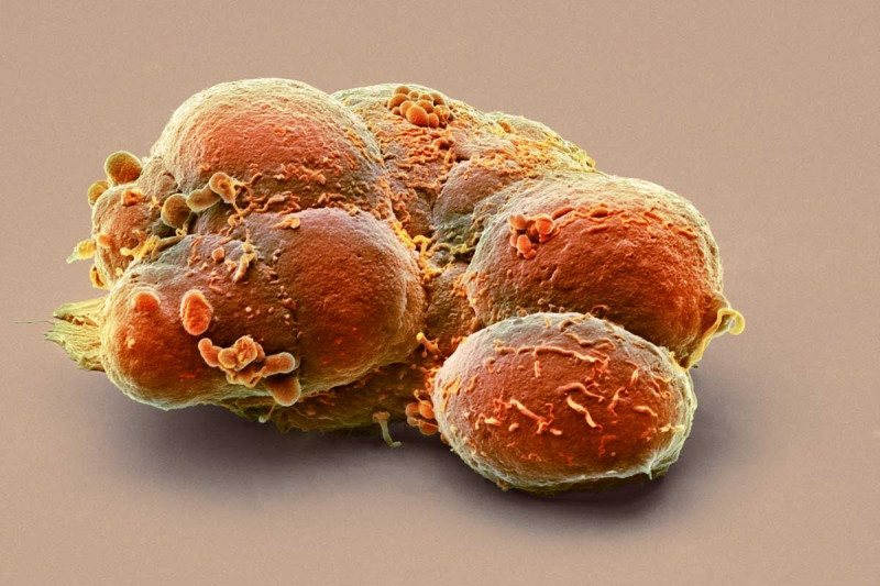 Colored scanning electron micrograph of a clump of pluripotent stem cells.