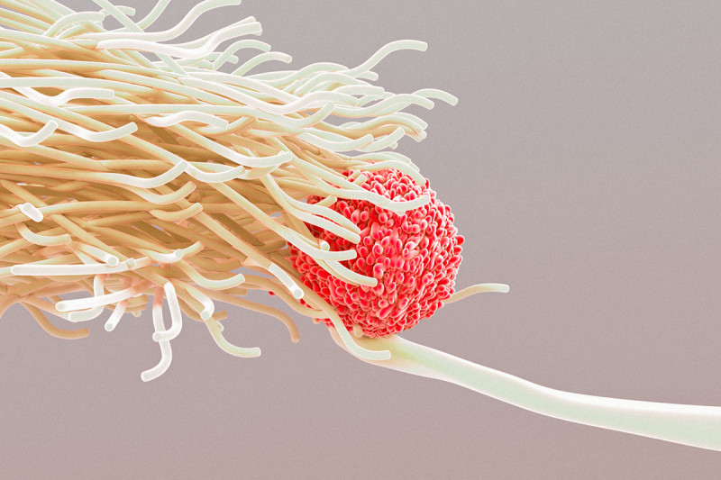 a colorful dendritic cell