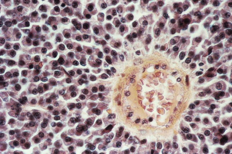 Micrograph of multiple myeloma cells