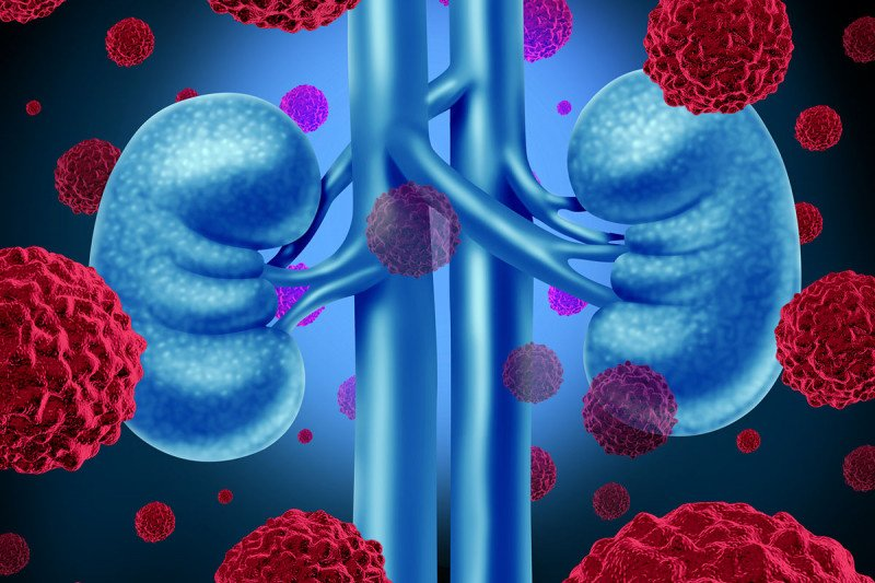 The Obesity Paradox Study Suggests Fat Near Kidney Tumors Plays Critical Role In Treatment Response Memorial Sloan Kettering Cancer Center