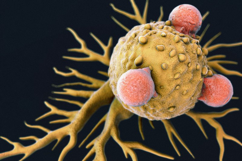 Illustration of T cells (orange) attacking a cancer cell (yellow).