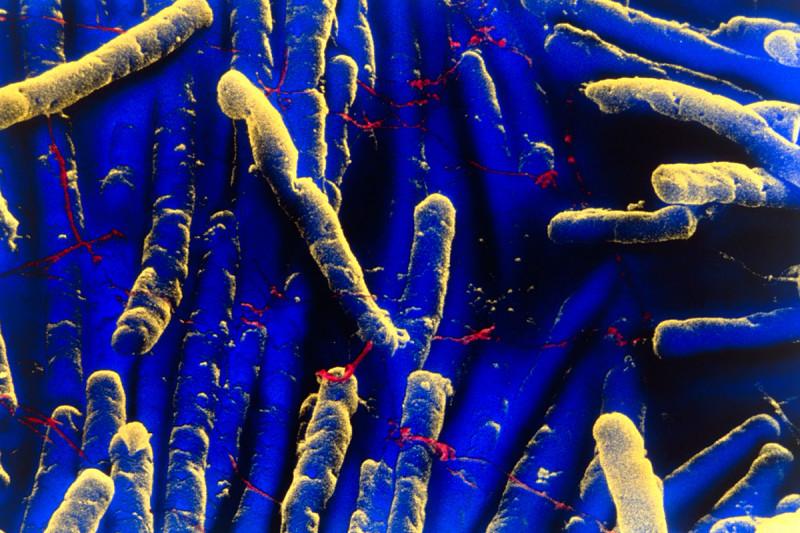 Pictured: Clostridium difficile