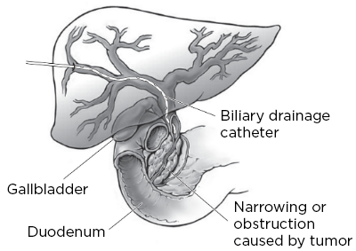 Figure 2. External biliary drainage catheter