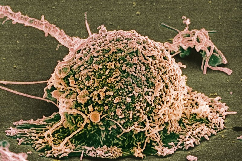 Scanning electron microscope image of a breast cancer cell.
