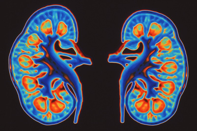 "Study Offers Insight into ""Obesity Paradox"" in Kidney Cancer"