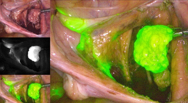 Excision of sentinel lymph node after visualization with indocyanine green and near-infrared imaging.