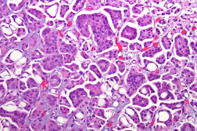 Figure 1. Micropapillary bladder cancer. Small, slender, and tight papillary clusters in lacunar spaces are characteristic of micropapillary carcinoma.