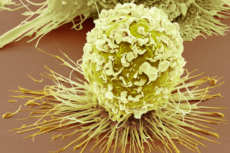 Researchers Reveal How Tumors Manipulate Certain Immune