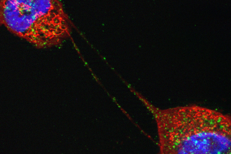 Pictured: Two mesothelioma cells connected by long extensions called tunneling nanotubes, which potentially may be a conduit for communication between the cells.