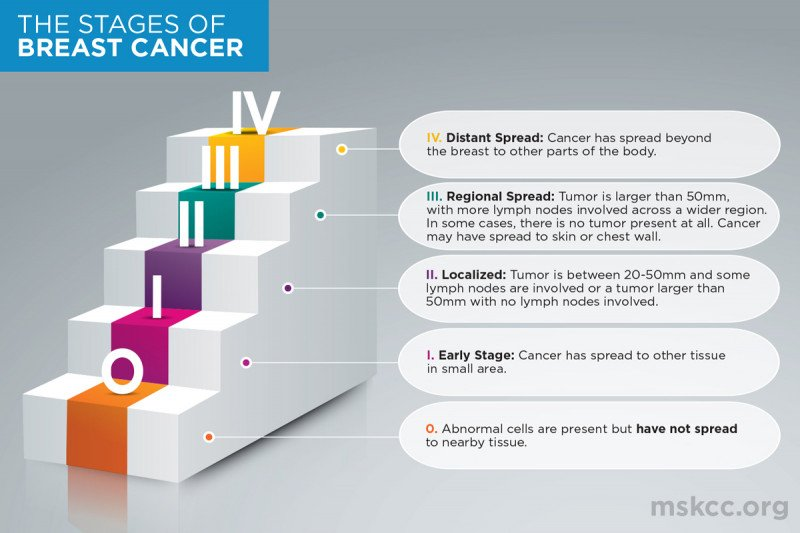 Breast cancer is classified into five different stages, ranging from 0 to IV. This illustration outlines each stage of breast cancer.