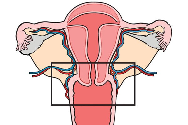 Diagram of uterus with a box around the cervix and surrounding tissue to showcase what is removed during radical trachelectomy.