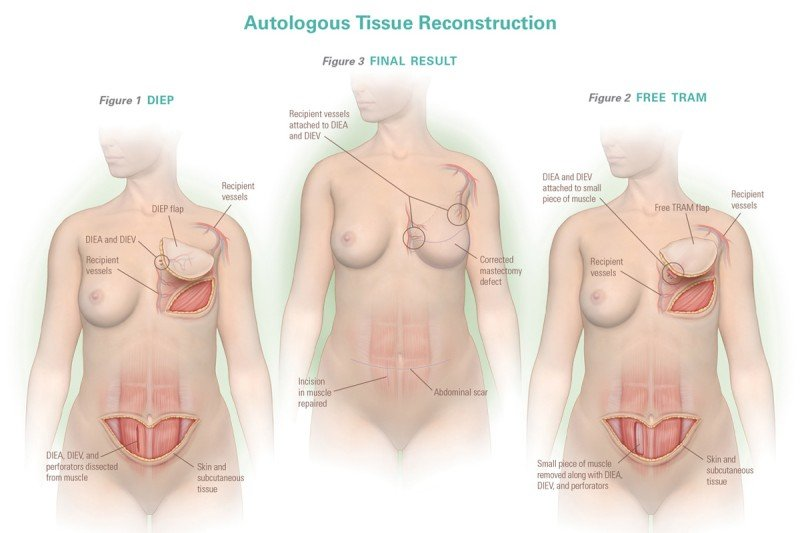 Autologous Tissue Reconstruction