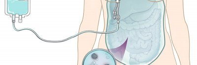 Illustration of chemotherapy being delivered to intraperitoneal space of human.