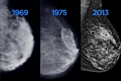 digital breast imaging tomosynthesis and digital subtraction mammography