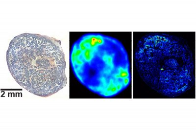 Three images of pancreas tumor