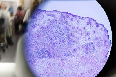 An infiltrative basal cell carcinoma under the microscope