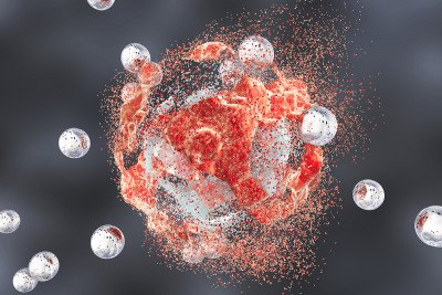 Medical illustration of nanoparticle spheres attacking cancer cell, which is beginning to disintegrate.