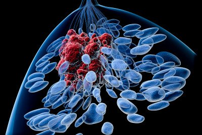 Illustration of breast encompassing blue normal cells and red cancer cells.