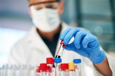 photo of blood vials