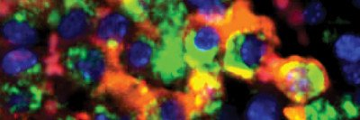 iron-filled macrophages from a breast cancer tumor