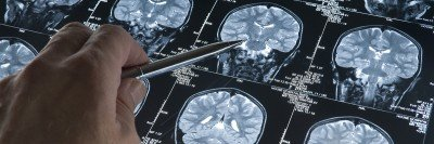 Hand points to brain scan