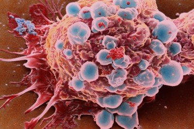 Microscopic view of a breast cancer cell