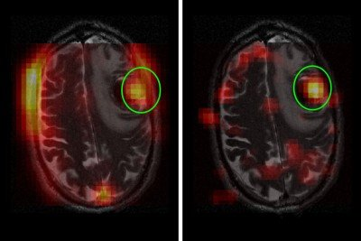 Side-by-side images of brain MRIs.