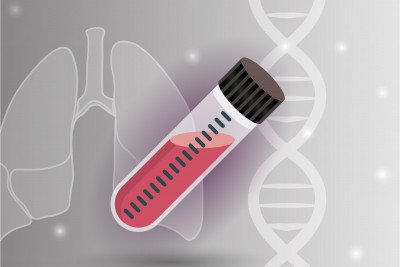 A tube of blood superimposed on a lung and a DNA helix