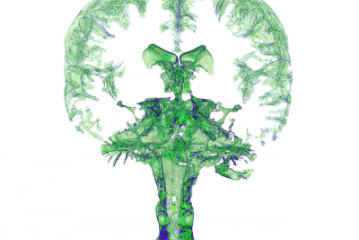 MRI of brain and spinal fluid in green