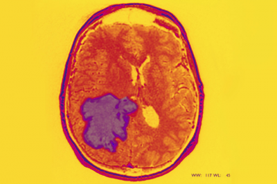 Enhanced MRI of a glioblastoma