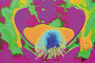 Conceptual orange-and-green-colored X-ray showing cancer of the bladder.