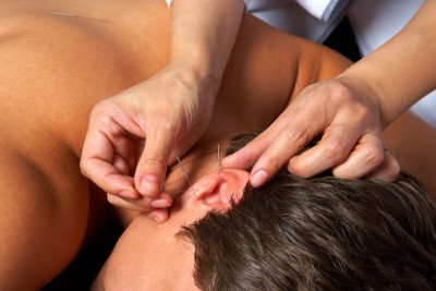 Acupuncture needles are inserted into specific locations (acupoints) on the body.