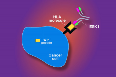 The ESK1 monoclonal antibody was engineered to recognize WT1 peptides brought to the surface of cancer cells.