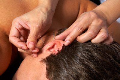 Acupuncture needles are placed in specific positions on the body called acupoints.