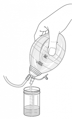 Figure 2: Emptying the bulb