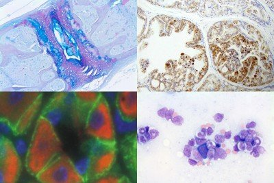 Alcian blue/PAS and IHC; Bottom row, from left: IF and Wright-Giemsa
