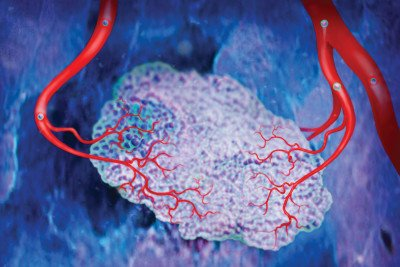 Blood vessels supply tumors with the nutrients they need to grow.