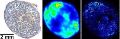 Three images of pancreas tumor