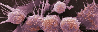 Prostate cancer cells, colored red in scanning electron micrograph (SEM).