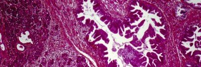 Pancreatic tumor cells