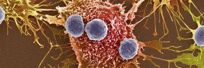 Tumor mutation model