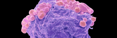 Colored scanning electron micrograph of a lymphoma cell showing early apoptotic changes