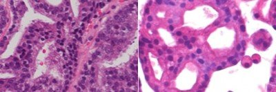 Stained pathology slides of a patient's tumor (right) and of an organoid made from that tumor (left).