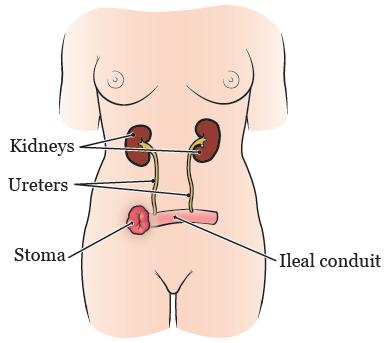Рисунок 1.  Мочевыделительная система после операции на мочевом пузыре с формированием уростомы (подвздошного канала)