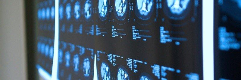 Department of Radiology | Memorial Sloan Kettering Cancer Center
